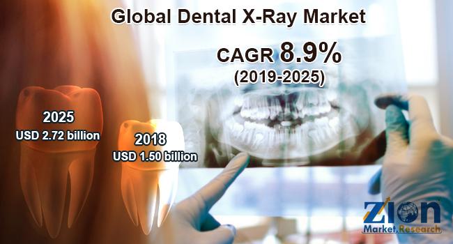 Global Dental X-Ray market