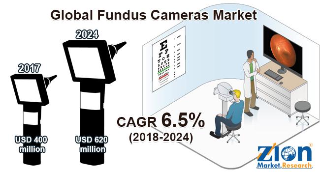 Global Fundus Cameras Market