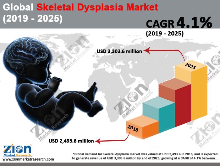 Global Skeletal Dysplasia Market