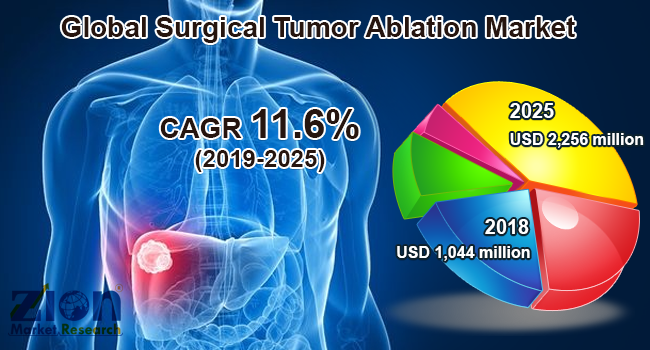 Global Surgical Tumor Ablation Market