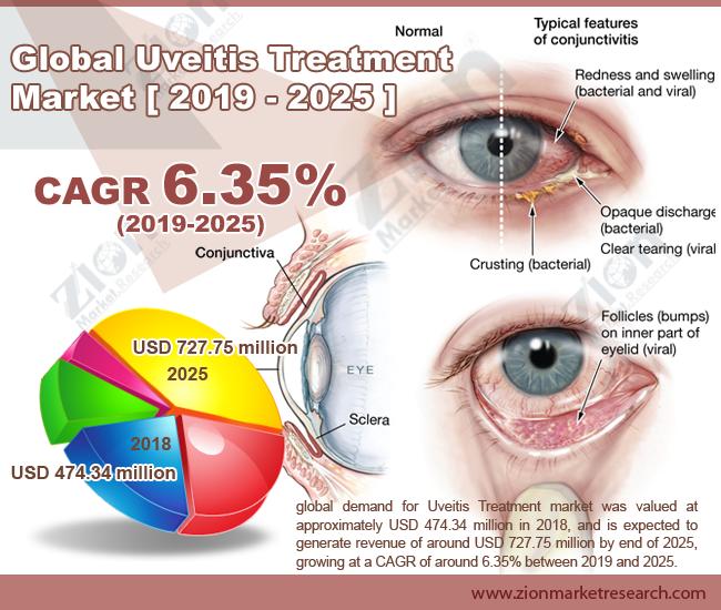 Global Uveitis Treatment Market
