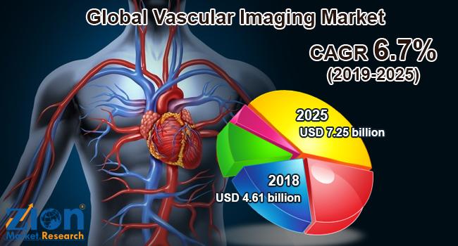 Global Vascular Imaging Market
