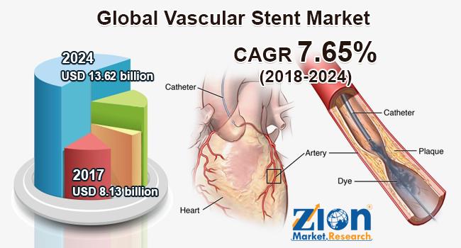 Global Vascular Stent Market