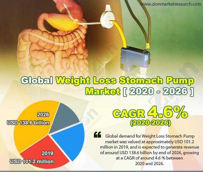 Global Weight Loss Stomach Pump Market